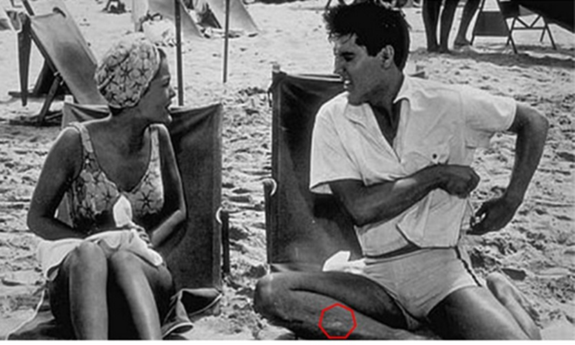 Elvis from Blue Hawaii showing scar on his right leg